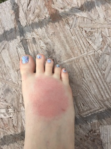 spider bite on foot